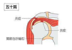 注射 ヒアルロン 肩 酸